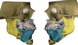 La operación se llevó con éxito en el Quirónsalud Campo de Gibraltar.