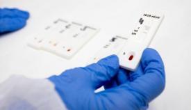 Uno de los test de antígenos que aplicará la Junta en camiones itinerantes
